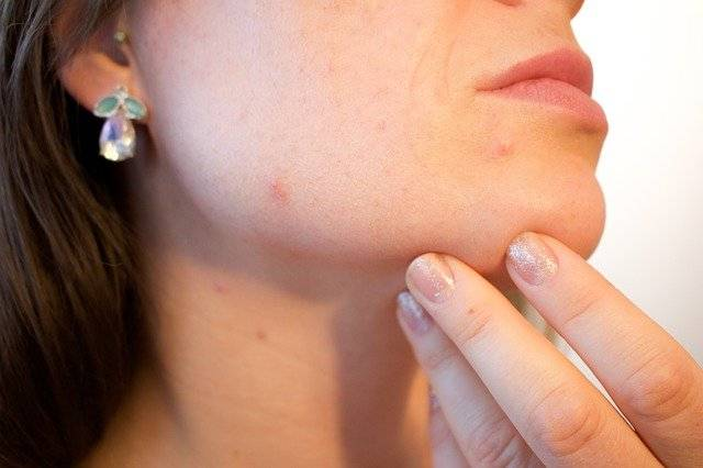 What Causes Psoriasis? Know the 11 Worst Triggers