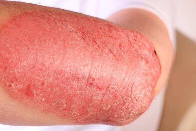 Can Psoriasis Spread? Recognize the Signs and Stop It