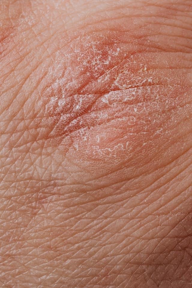 Is Psoriasis an Autoimmune Disease?