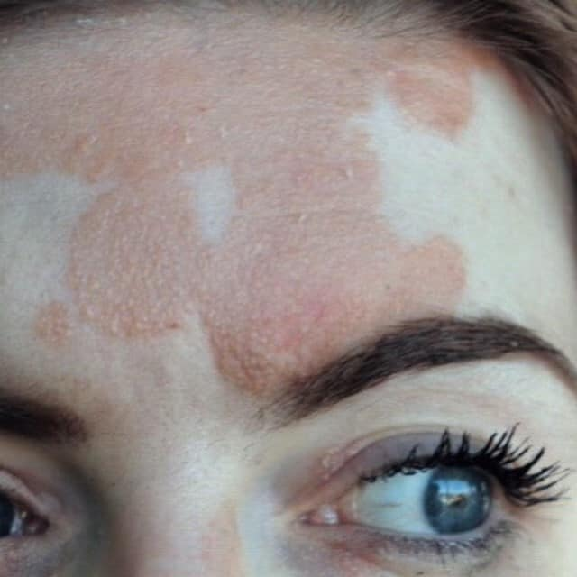 Psoriasis On Face