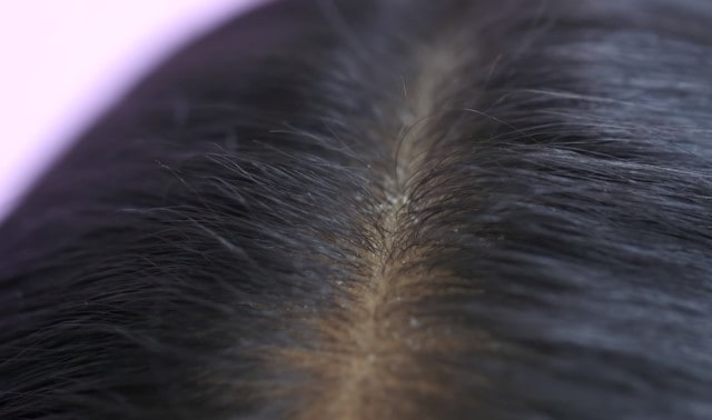 What Can You Do About Scalp Psoriasis?