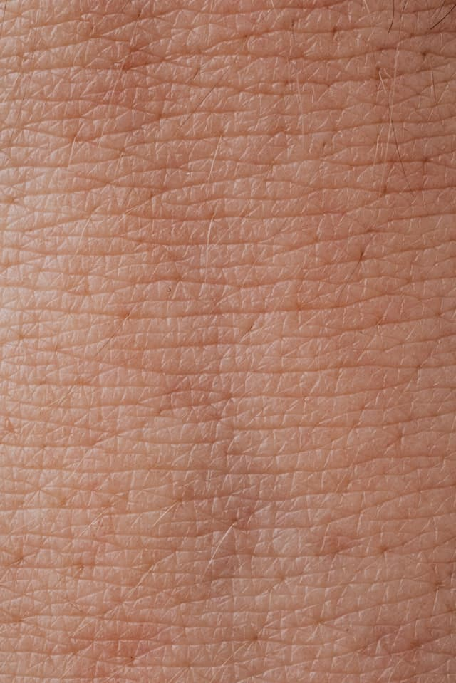 Vital Health Recommendations for Psoriasis Patients