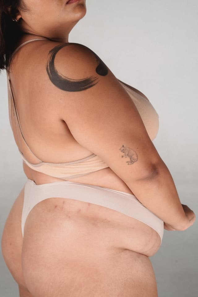 Psoriasis and Obesity, Is There Any Connection?
